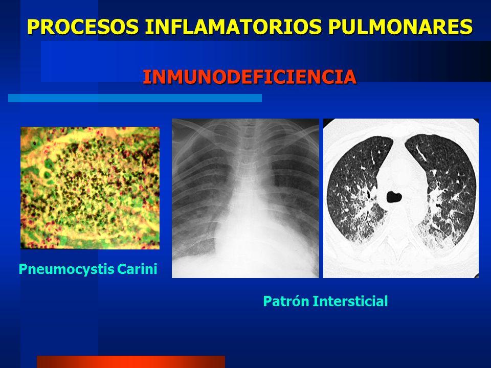 PROCESOS INFLAMATORIOS PULMONARES INMUNODEFICIENCIA Pneumocystis Carini? Neumonía Viral?