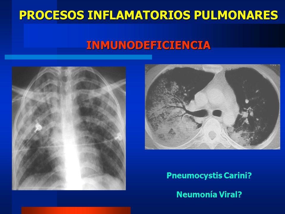 PROCESOS INFLAMATORIOS PULMONARES COMPLICACIONES Derrame pleural.