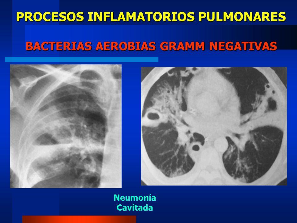 PROCESOS INFLAMATORIOS PULMONARES BACTERIAS AEROBIAS GRAMM NEGATIVAS Neumonía Cavitada