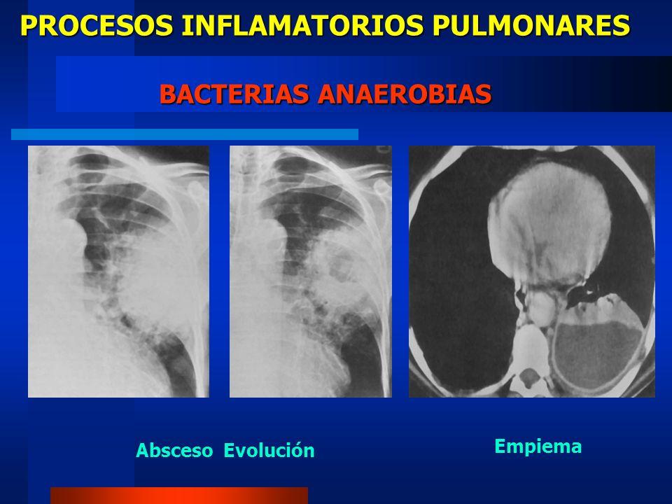 PROCESOS INFLAMATORIOS PULMONARES RADIOLOGIA TUBERCULOSIS PRIMARIA INFILTRADO UNICO POCO EXTENSO Nódulo de Ghon Calcificaciones como secuela de complejo primario ADENOMEGALIA Mas común en el lado de la lesión Compresión - epituberculosis - colapso