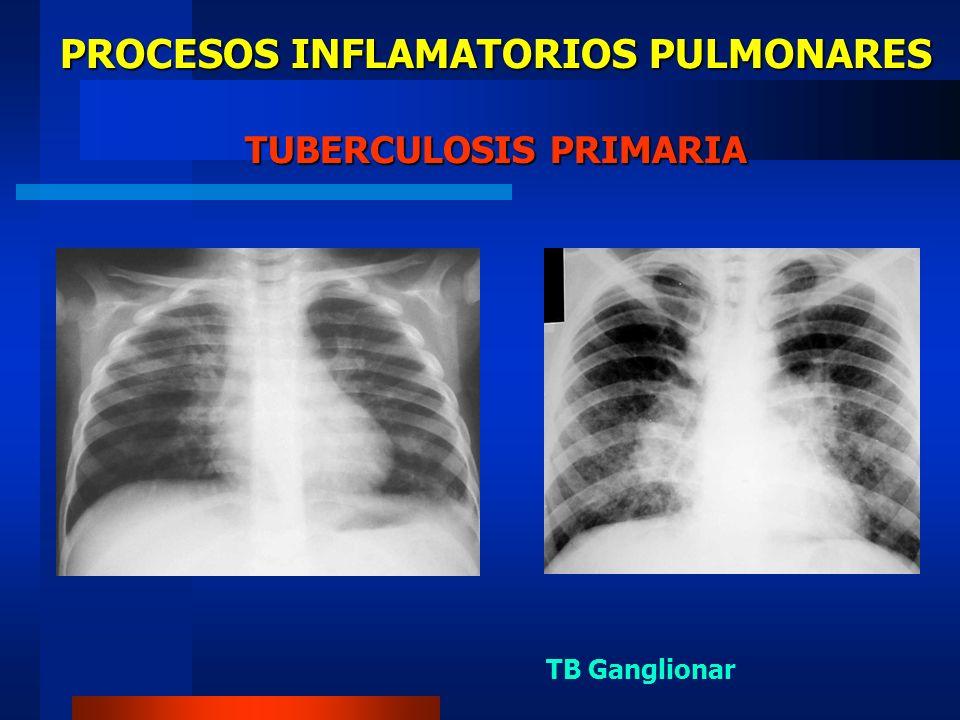 PROCESOS INFLAMATORIOS PULMONARES RADIOLOGIA EN TUBERCULOSIS DE REINFECCION (1) Infiltrado uni o bilateral.
