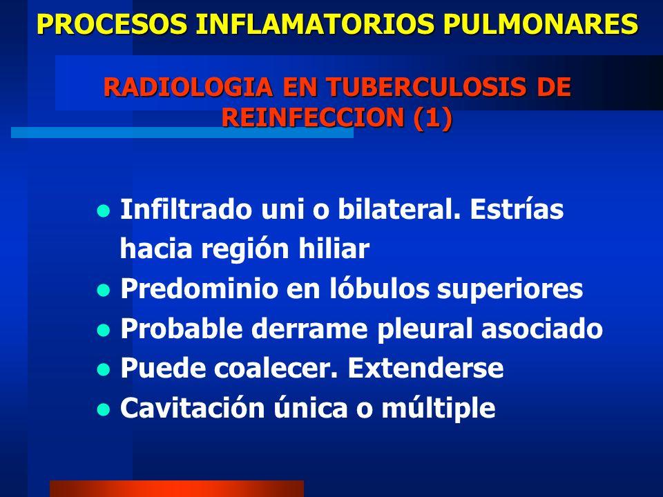 PROCESOS INFLAMATORIOS PULMONARES RADIOLOGIA EN TUBERCULOSIS DE REINFECCION (1) Infiltrado uni o bilateral. Estrías hacia región hiliar Predominio en