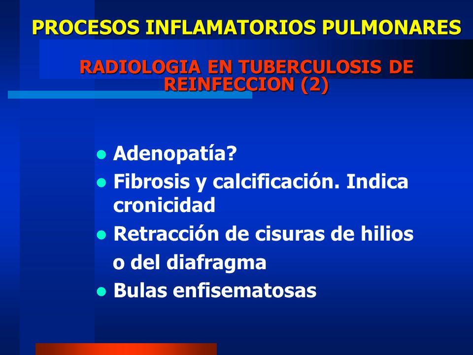 PROCESOS INFLAMATORIOS PULMONARES TUBERCULOSIS DE REINFECCION Infiltrado