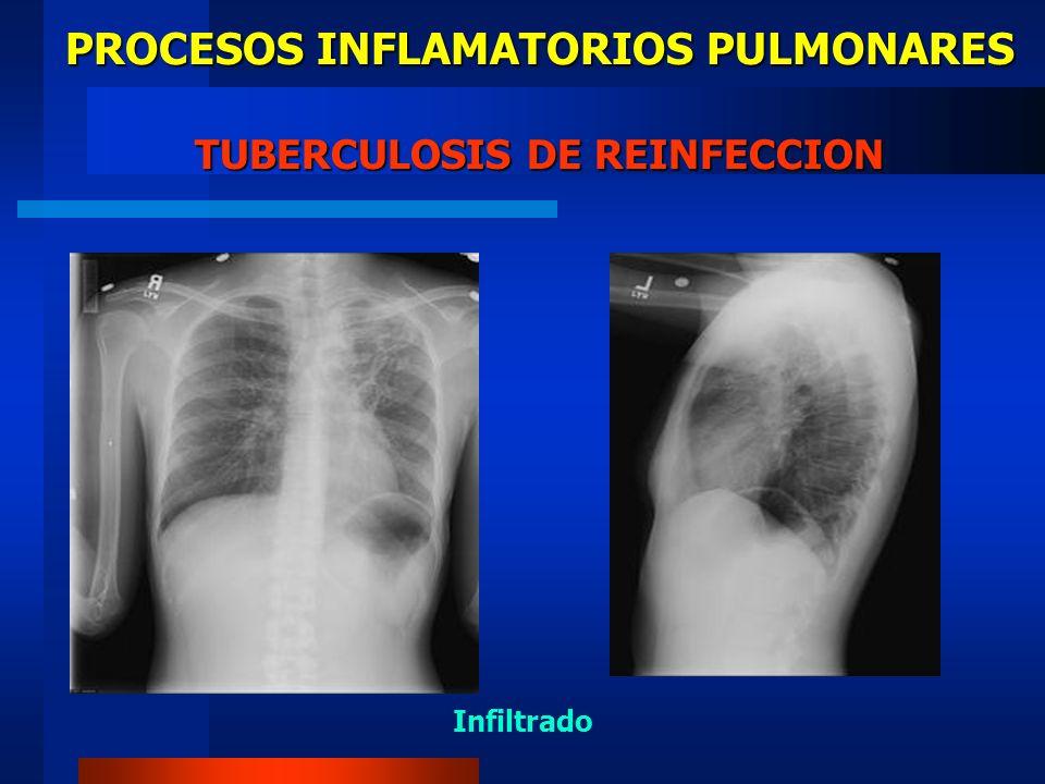 PROCESOS INFLAMATORIOS PULMONARES TUBERCULOSIS POSTPRIMARIA TB Cavitada Bronquiectasia