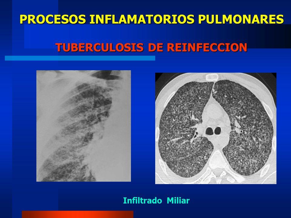 PROCESOS INFLAMATORIOS PULMONARES INFECCION PULMONAR POR HONGOS Histoplasmosis.