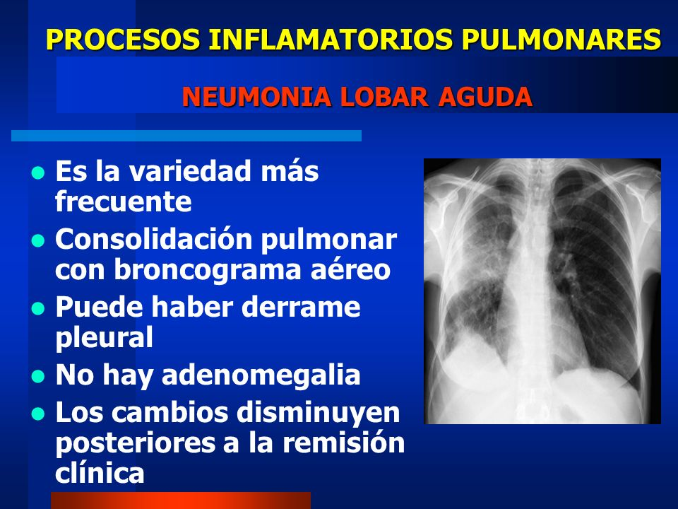 PROCESOS INFLAMATORIOS PULMONARES NEUMONIA LOBAR AGUDA Es la variedad más frecuente Consolidación pulmonar con broncograma aéreo Puede haber derrame p