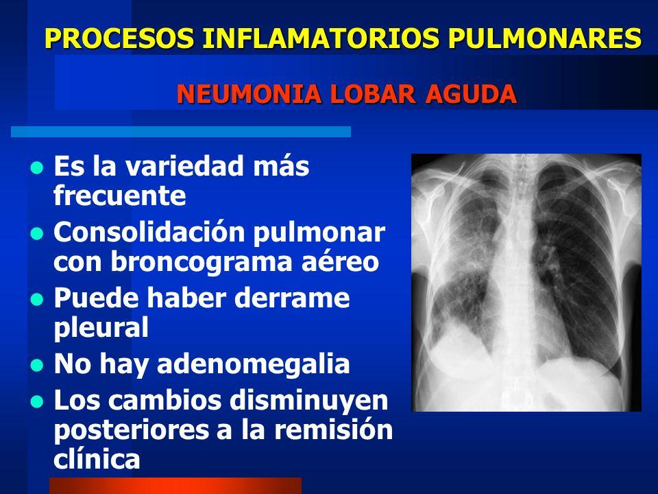 PROCESOS INFLAMATORIOS PULMONARES ORGANISMOS CAUSANTES DE NEUMONIA (1) BACTERIAS FRECUENTES Estreptococo pneumonie Estafilococo aureus Hemofilus neumonie Micoplasma neumonie NO FRECUENTES Pseudomona (G -) Escherichia coli (G -) Klebsielleae (G -) Legionella (G -)