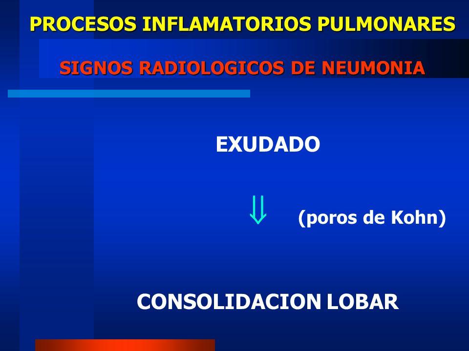 PROCESOS INFLAMATORIOS PULMONARES SIGNOS RADIOLOGICOS DE NEUMONIA EXUDADO (poros de Kohn) CONSOLIDACION LOBAR