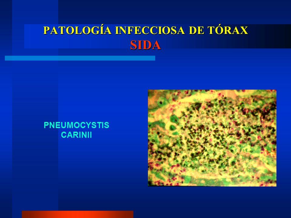 PATOLOGÍA INFECCIOSA DE TÓRAX SIDA PNEUMOCYSTIS CARINII