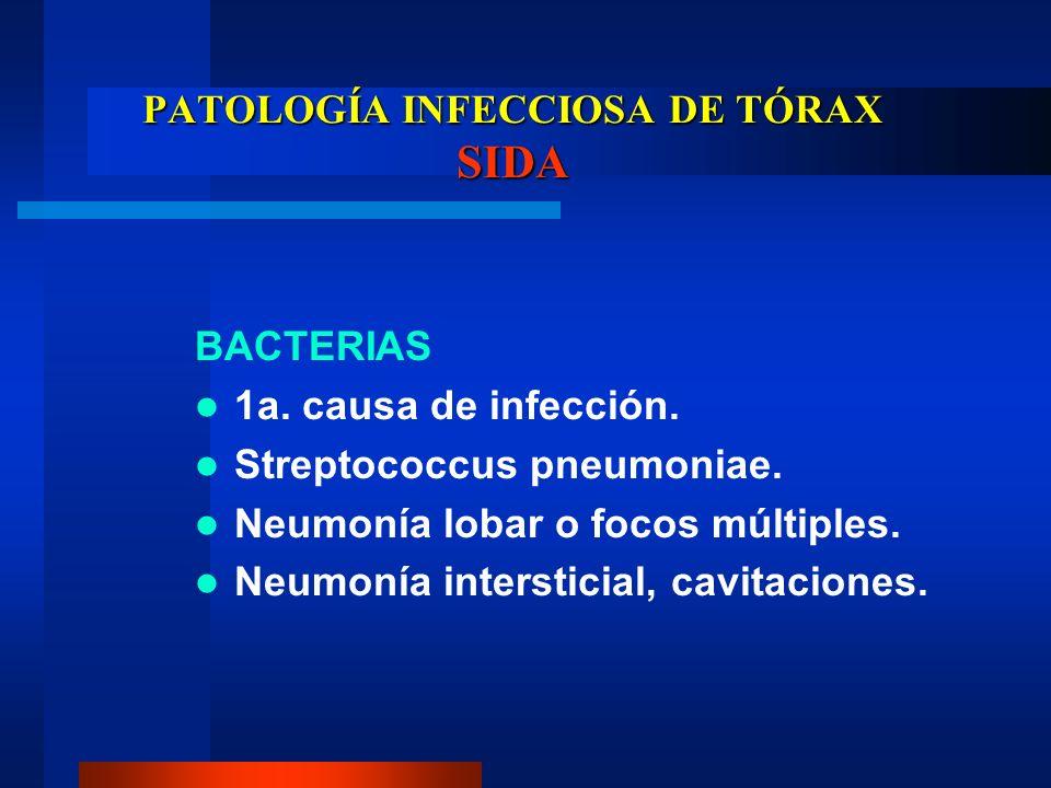 PATOLOGÍA INFECCIOSA DE TÓRAX SIDA BACTERIAS 1a. causa de infección. Streptococcus pneumoniae. Neumonía lobar o focos múltiples. Neumonía intersticial
