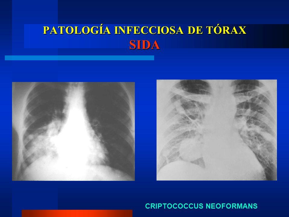PATOLOGÍA INFECCIOSA DE TÓRAX SIDA CRIPTOCOCCUS NEOFORMANS