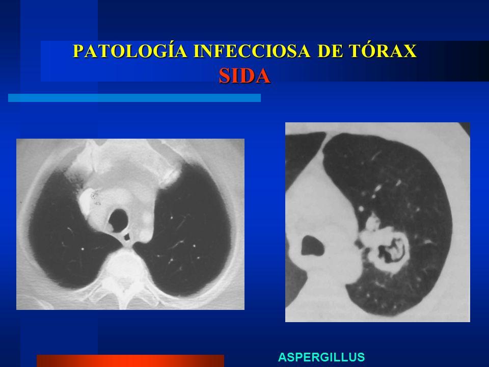 PATOLOGÍA INFECCIOSA DE TÓRAX SIDA ASPERGILLUS