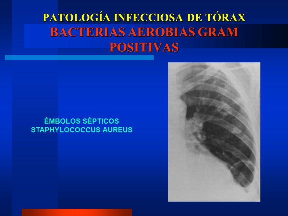 PATOLOGÍA INFECCIOSA DE TÓRAX BACTERIAS AEROBIAS GRAM POSITIVAS ÉMBOLOS SÉPTICOS STAPHYLOCOCCUS AUREUS