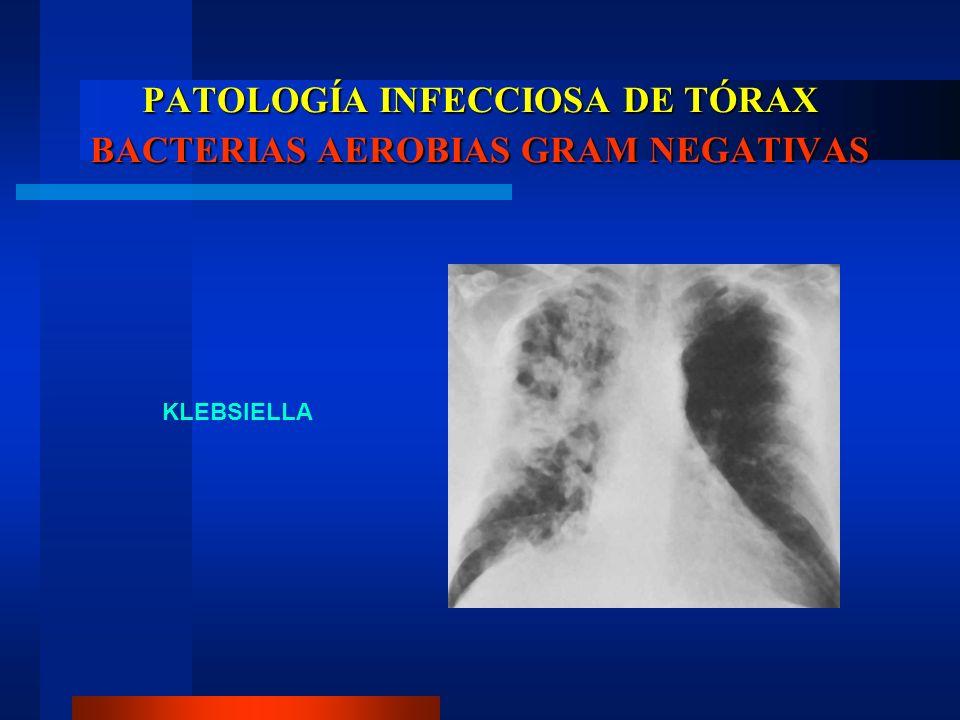 PATOLOGÍA INFECCIOSA DE TÓRAX BACTERIAS AEROBIAS GRAM NEGATIVAS KLEBSIELLA
