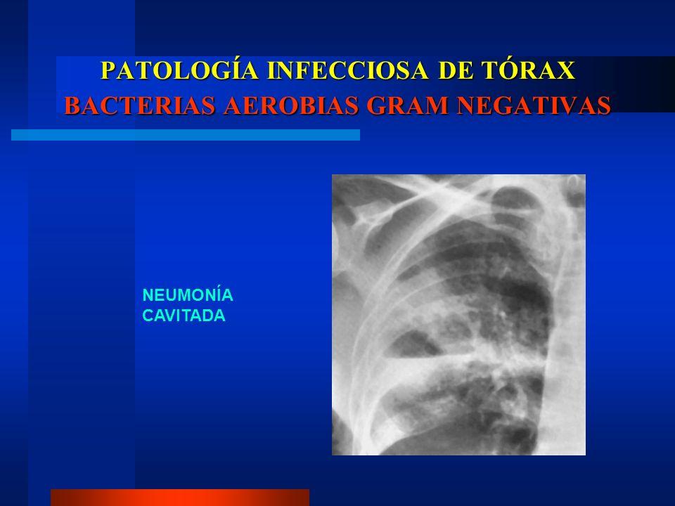 PATOLOGÍA INFECCIOSA DE TÓRAX BACTERIAS AEROBIAS GRAM NEGATIVAS NEUMONÍA CAVITADA