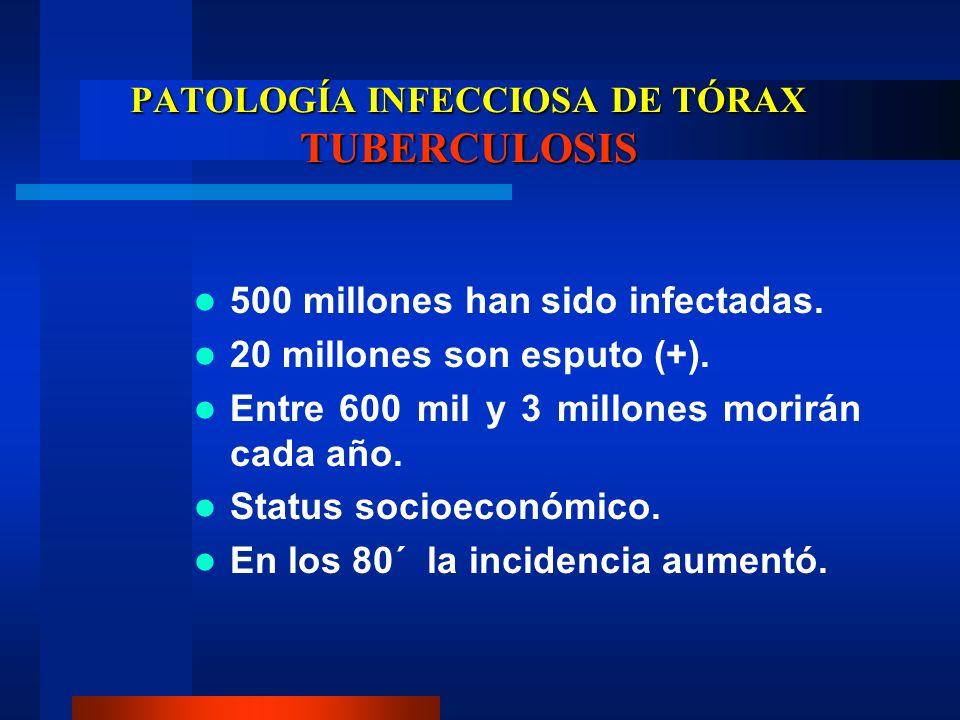 PATOLOGÍA INFECCIOSA DE TÓRAX TUBERCULOSIS 500 millones han sido infectadas. 20 millones son esputo (+). Entre 600 mil y 3 millones morirán cada año.