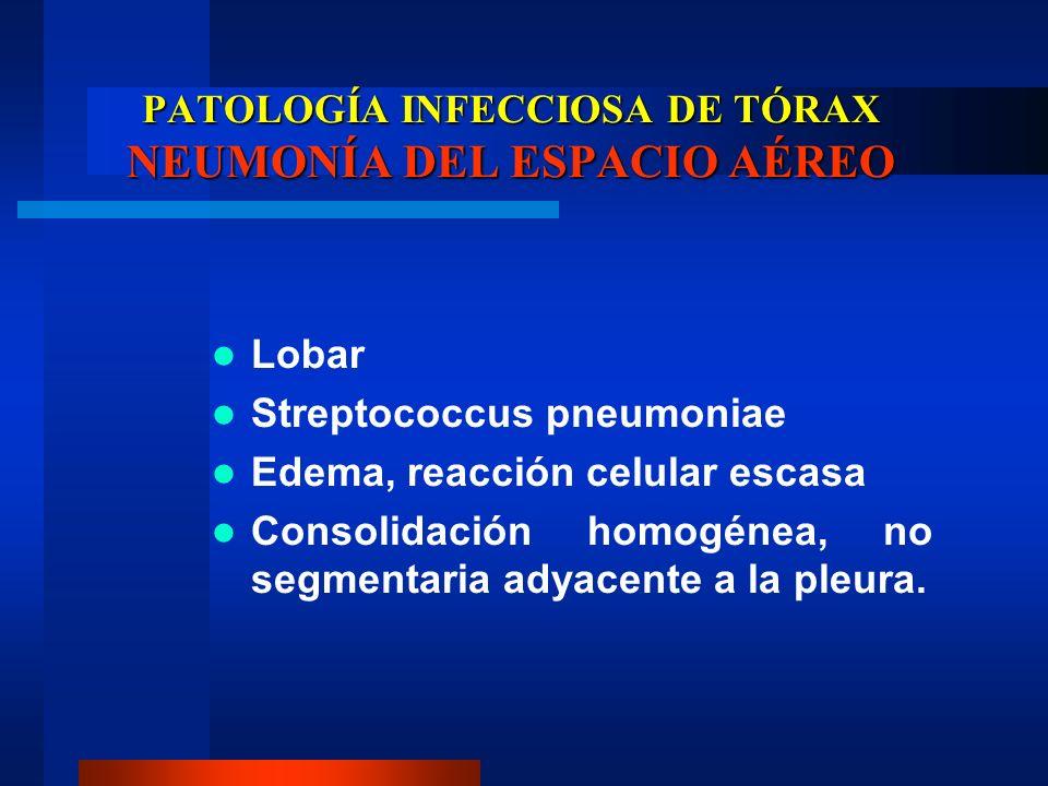 PATOLOGÍA INFECCIOSA DE TÓRAX NEUMONÍA DEL ESPACIO AÉREO Lobar Streptococcus pneumoniae Edema, reacción celular escasa Consolidación homogénea, no seg