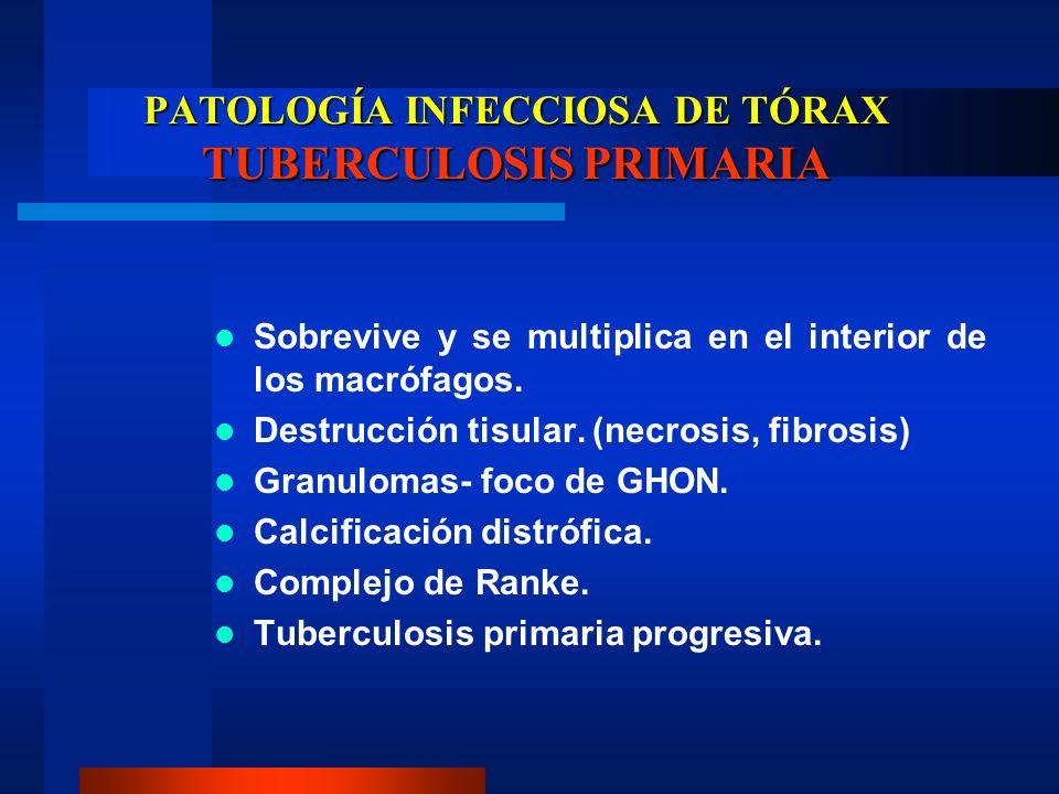 PATOLOGÍA INFECCIOSA DE TÓRAX TUBERCULOSIS PRIMARIA Sobrevive y se multiplica en el interior de los macrófagos. Destrucción tisular. (necrosis, fibros