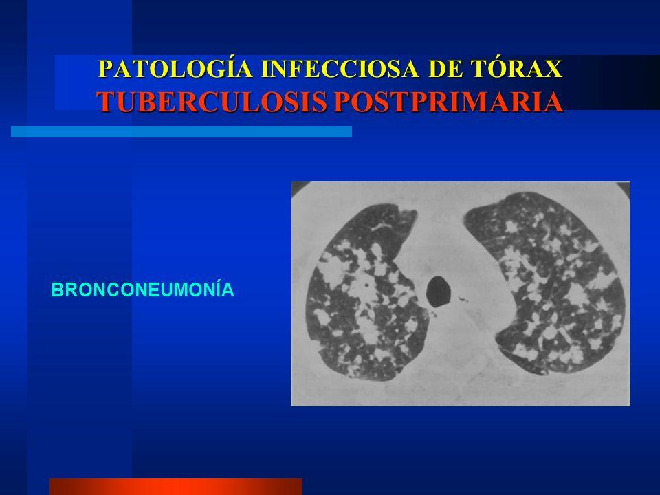 PATOLOGÍA INFECCIOSA DE TÓRAX TUBERCULOSIS POSTPRIMARIA BRONCONEUMONÍA