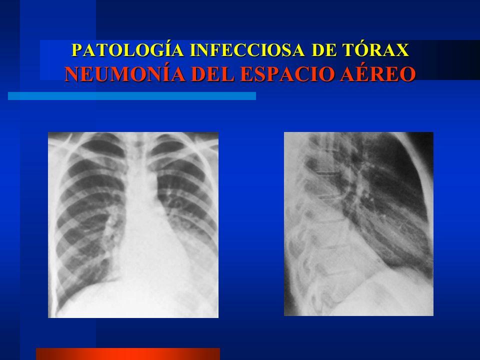 PATOLOGÍA INFECCIOSA DE TÓRAX BRONCONEUMONÍA Lobular Staphylococcus aureus (GRAM -) Exudado de polimorfonucleares Focos múltiples Consolidación segmentaria en parches