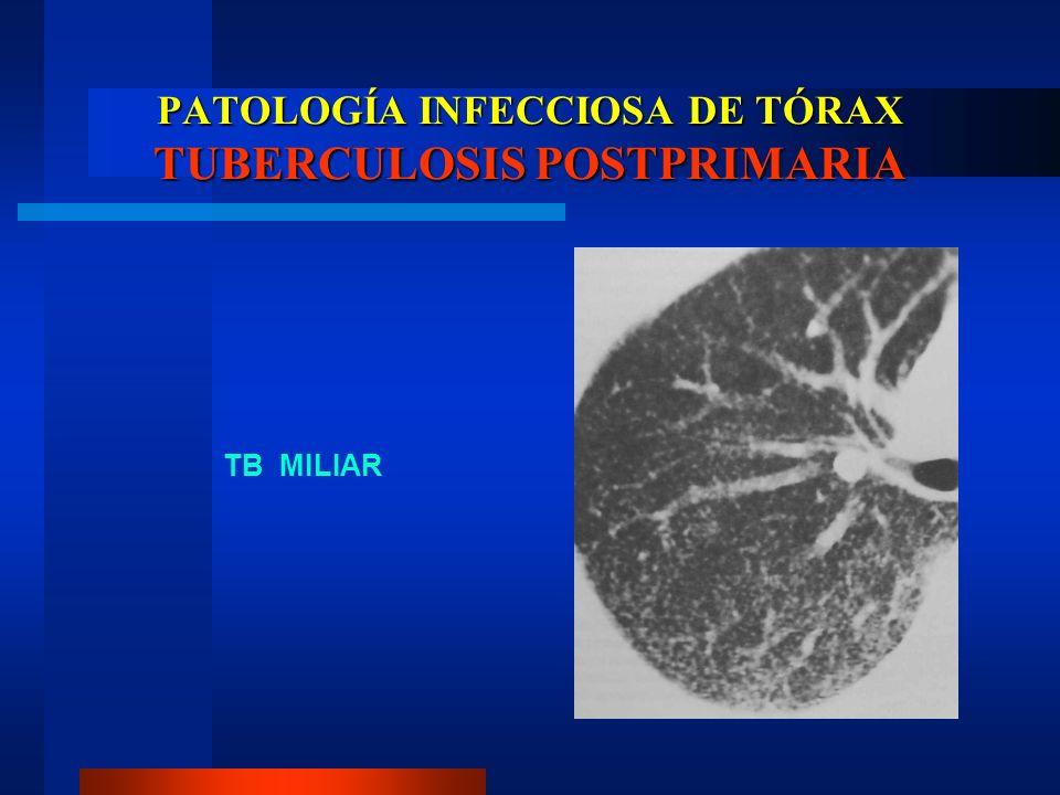 PATOLOGÍA INFECCIOSA DE TÓRAX TUBERCULOSIS POSTPRIMARIA TB MILIAR