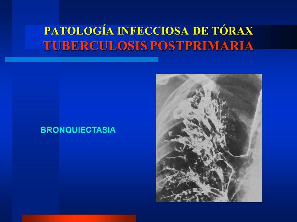 PATOLOGÍA INFECCIOSA DE TÓRAX TUBERCULOSIS POSTPRIMARIA BRONQUIECTASIA