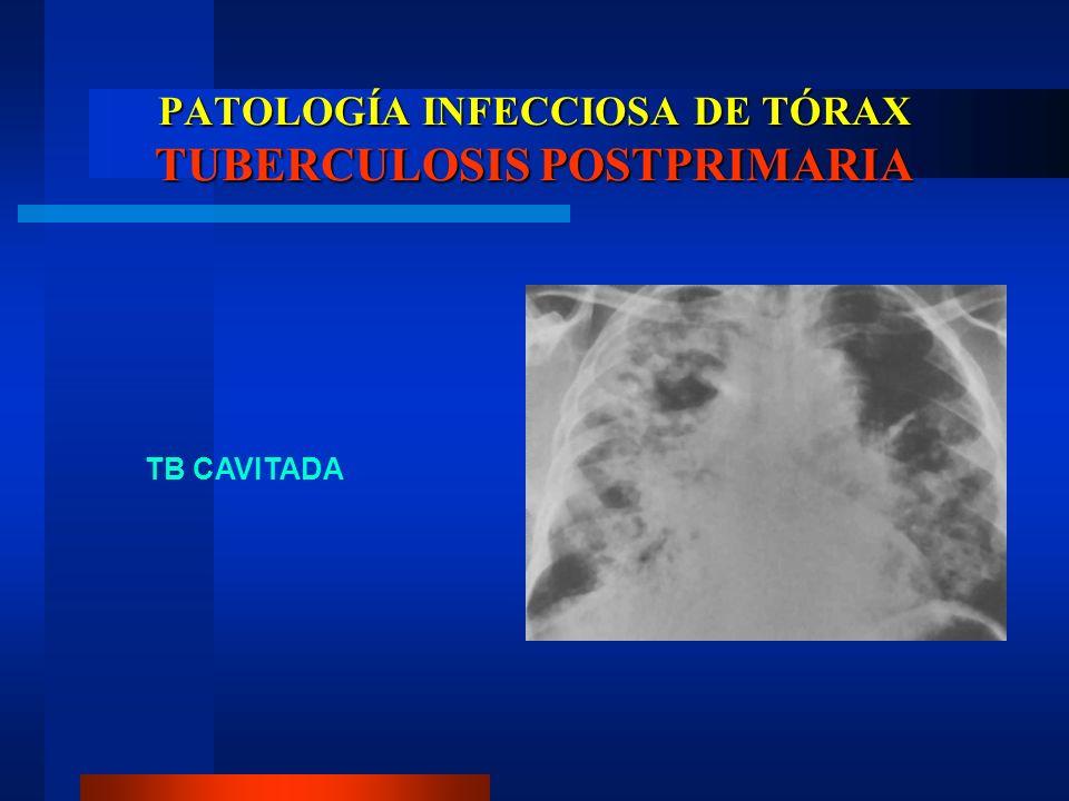 PATOLOGÍA INFECCIOSA DE TÓRAX TUBERCULOSIS POSTPRIMARIA TB CAVITADA
