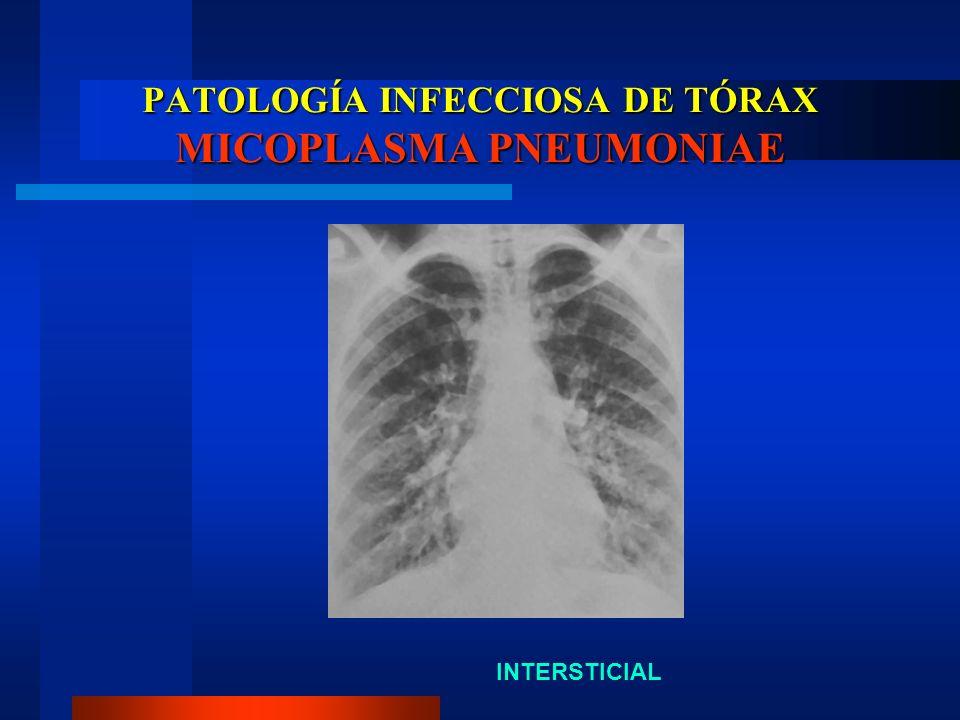 PATOLOGÍA INFECCIOSA DE TÓRAX MICOPLASMA PNEUMONIAE INTERSTICIAL