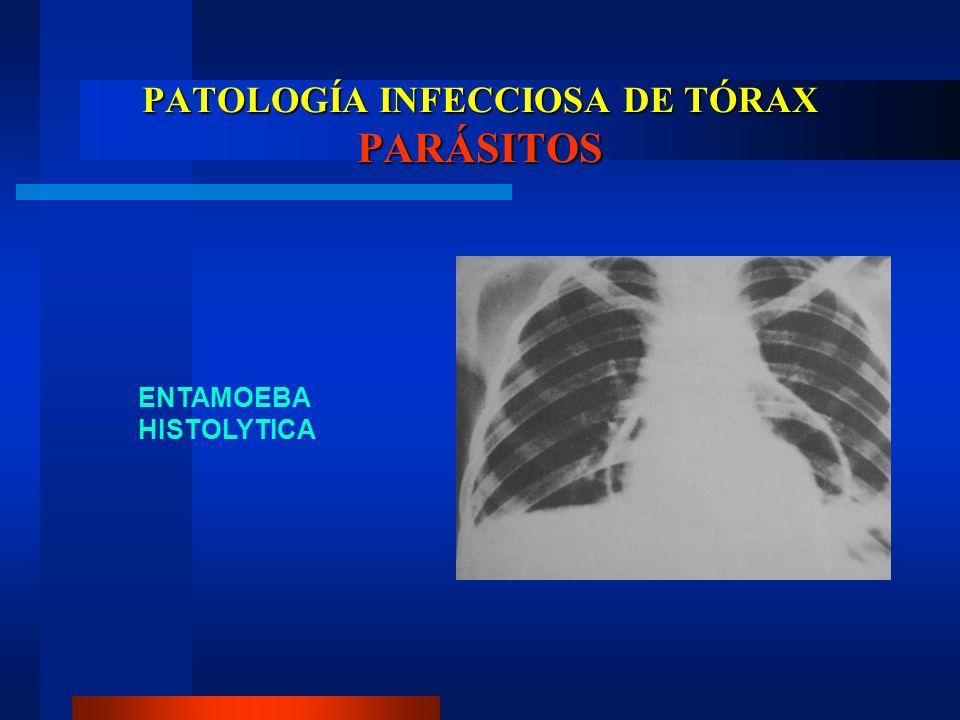 PATOLOGÍA INFECCIOSA DE TÓRAX PARÁSITOS ENTAMOEBA HISTOLYTICA