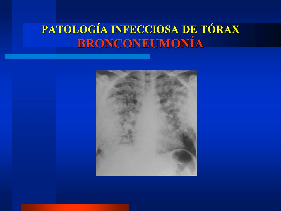 PATOLOGÍA INFECCIOSA DE TÓRAX NEUMONÍA INTERSTICIAL Virus, Micoplasma pneumoniae.