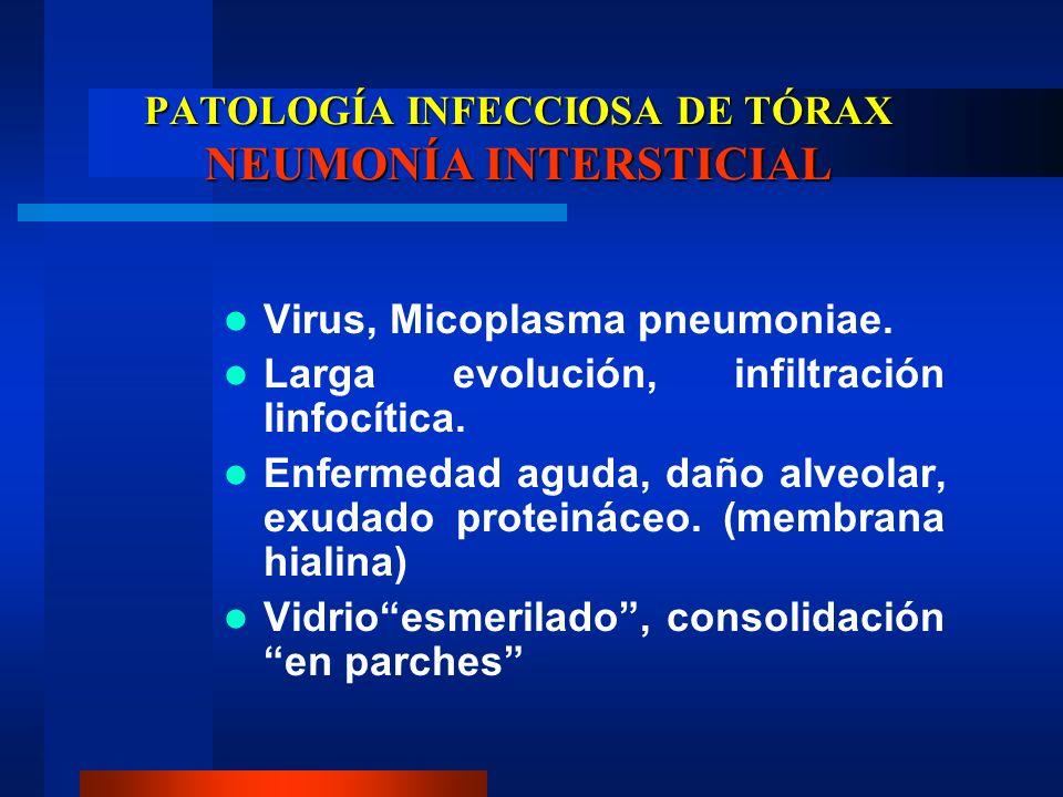 PATOLOGÍA INFECCIOSA DE TÓRAX NEUMONÍA INTERSTICIAL Virus, Micoplasma pneumoniae. Larga evolución, infiltración linfocítica. Enfermedad aguda, daño al