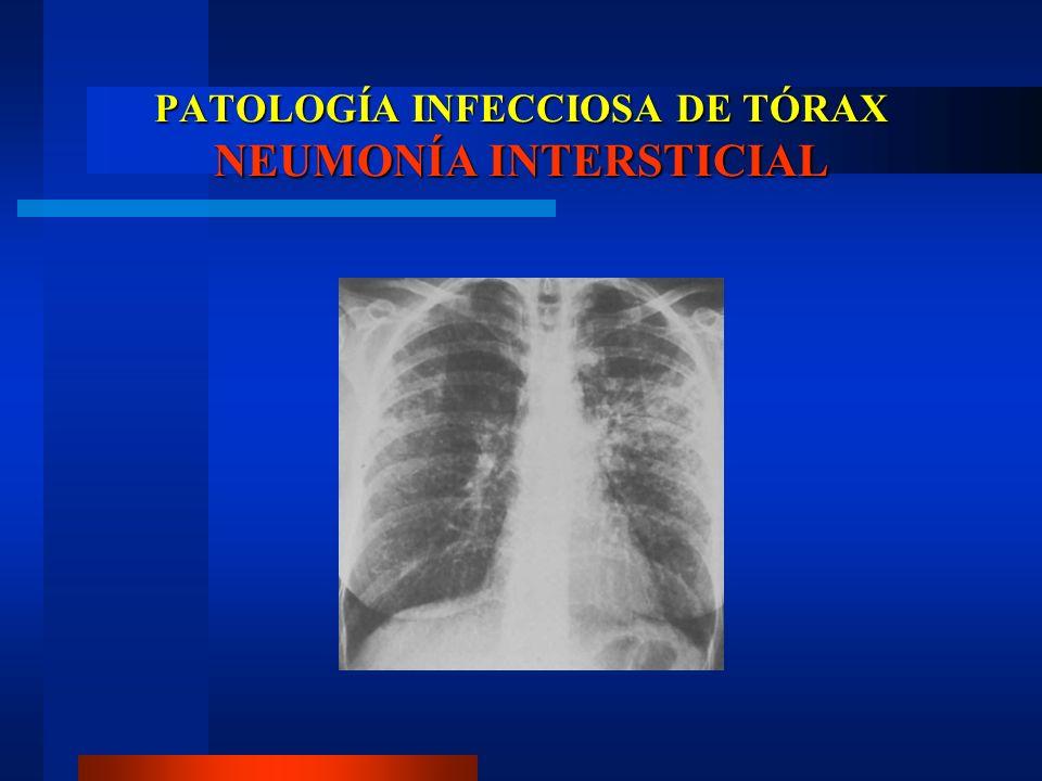 PATOLOGÍA INFECCIOSA DE TÓRAX TUBERCULOSIS Desarrollo de infección en niños y adolescentes.