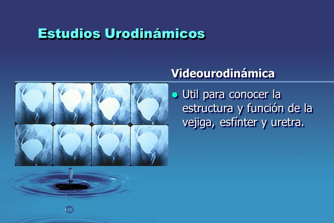 Estudios Urodinámicos Videourodinámica Util para conocer la estructura y función de la vejiga, esfínter y uretra. Util para conocer la estructura y fu