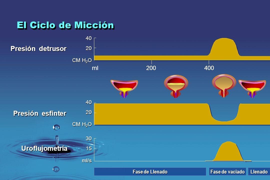 Presión detrusor 200400 40 20 CM H 2 O ml Presión esfínter Uroflujometría 40 20 CM H 2 O 30 15 ml/s Fase de Llenado Llenado Fase de vaciado El Ciclo d