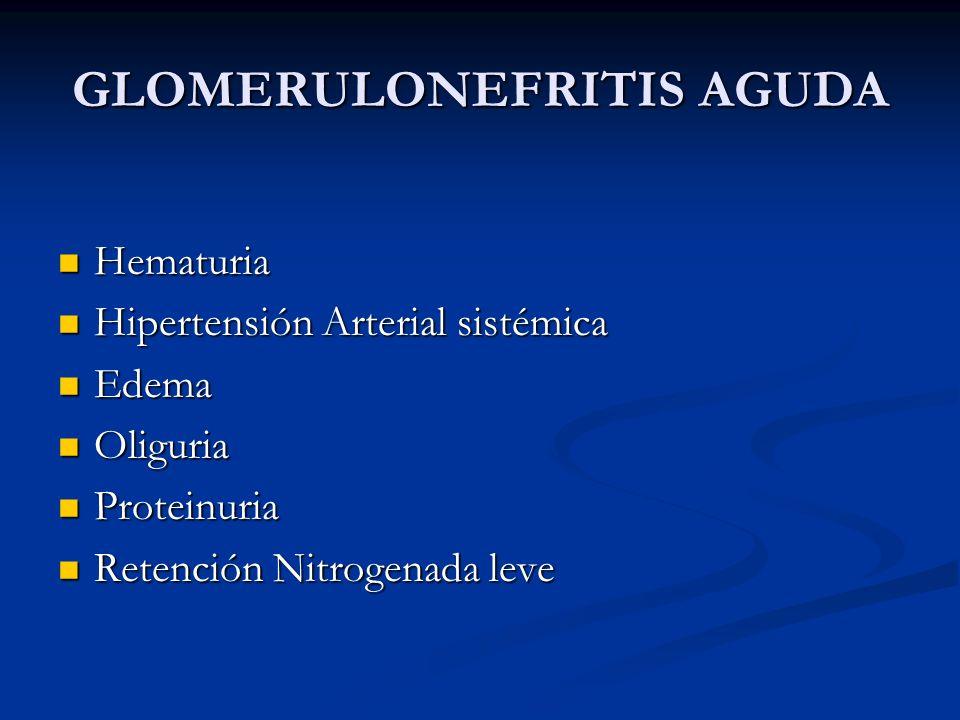 GLOMERULONEFRITIS AGUDA Hematuria Hematuria Hipertensión Arterial sistémica Hipertensión Arterial sistémica Edema Edema Oliguria Oliguria Proteinuria