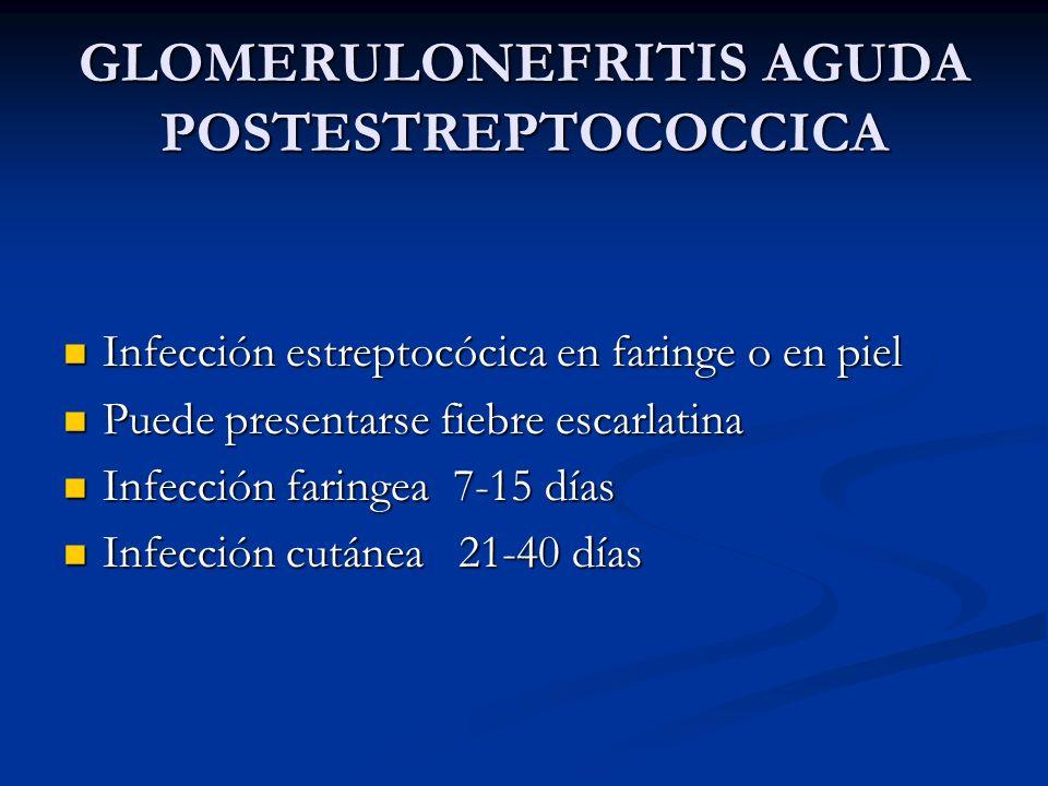 GLOMERULONEFRITIS AGUDA POSTESTREPTOCOCCICA Infección estreptocócica en faringe o en piel Infección estreptocócica en faringe o en piel Puede presenta