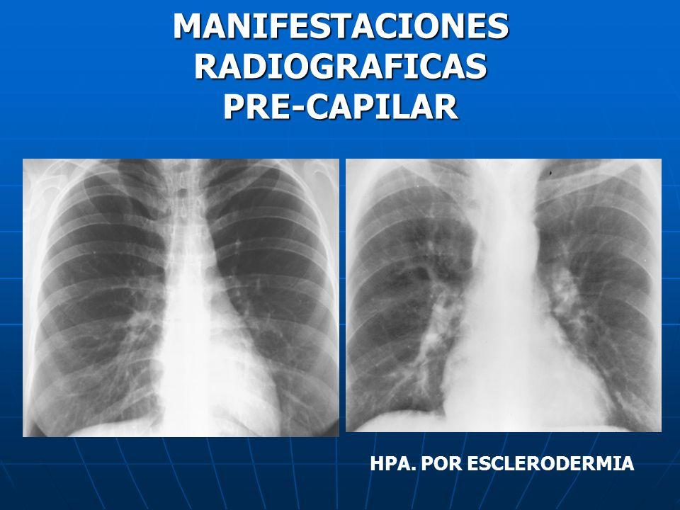 MANIFESTACIONES RADIOGRAFICAS PRE-CAPILAR HPA. POR ESCLERODERMIA