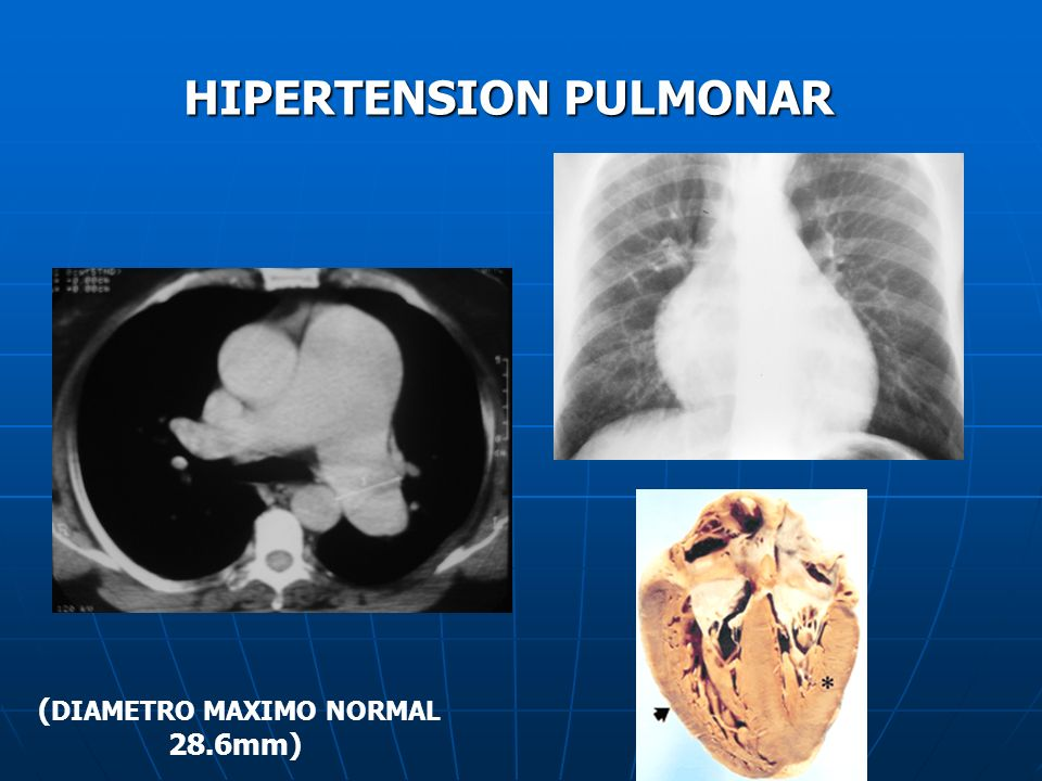 HIPERTENSION PULMONAR ( DIAMETRO MAXIMO NORMAL 28.6mm)