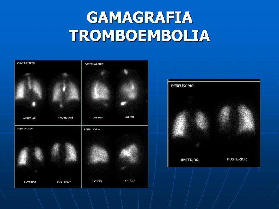 GAMAGRAFIA TROMBOEMBOLIA