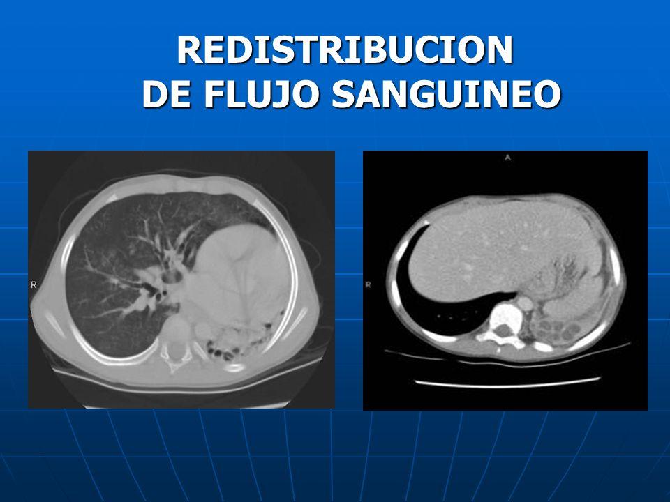 REDISTRIBUCION DE FLUJO SANGUINEO
