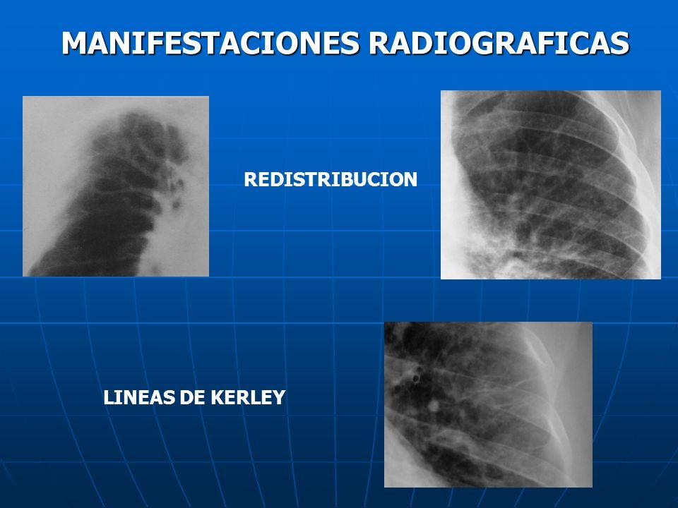 MANIFESTACIONES RADIOGRAFICAS LINEAS DE KERLEY REDISTRIBUCION