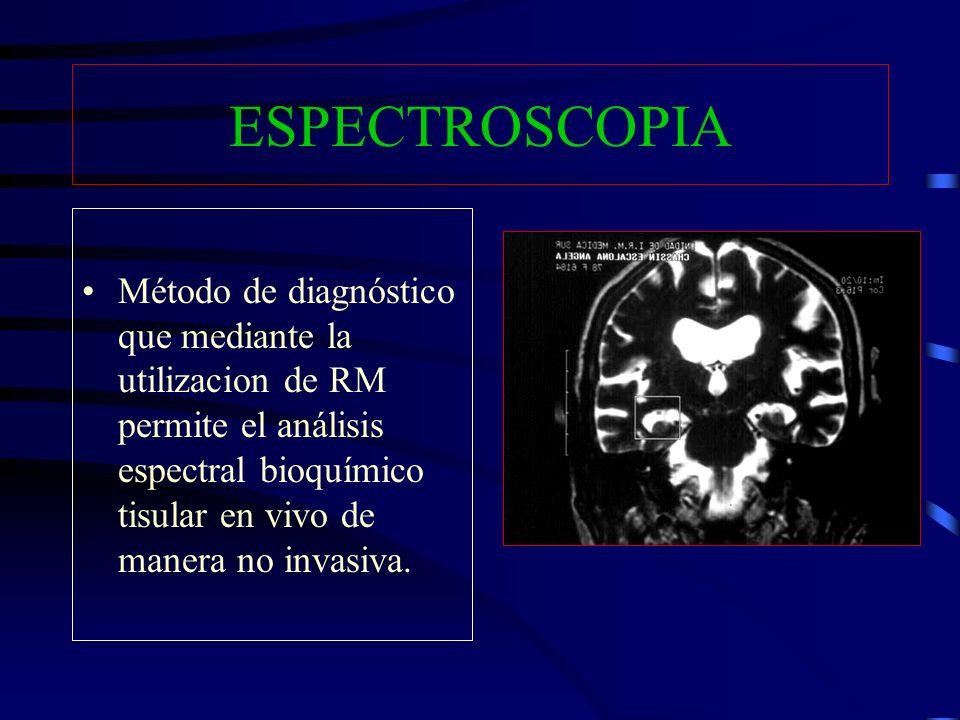 ESPECTROSCOPIA Método de diagnóstico que mediante la utilizacion de RM permite el análisis espectral bioquímico tisular en vivo de manera no invasiva.