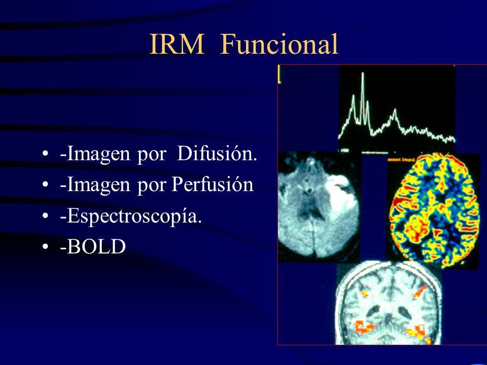IRM Funcional -Imagen por Difusión. -Imagen por Perfusión -Espectroscopía. -BOLD