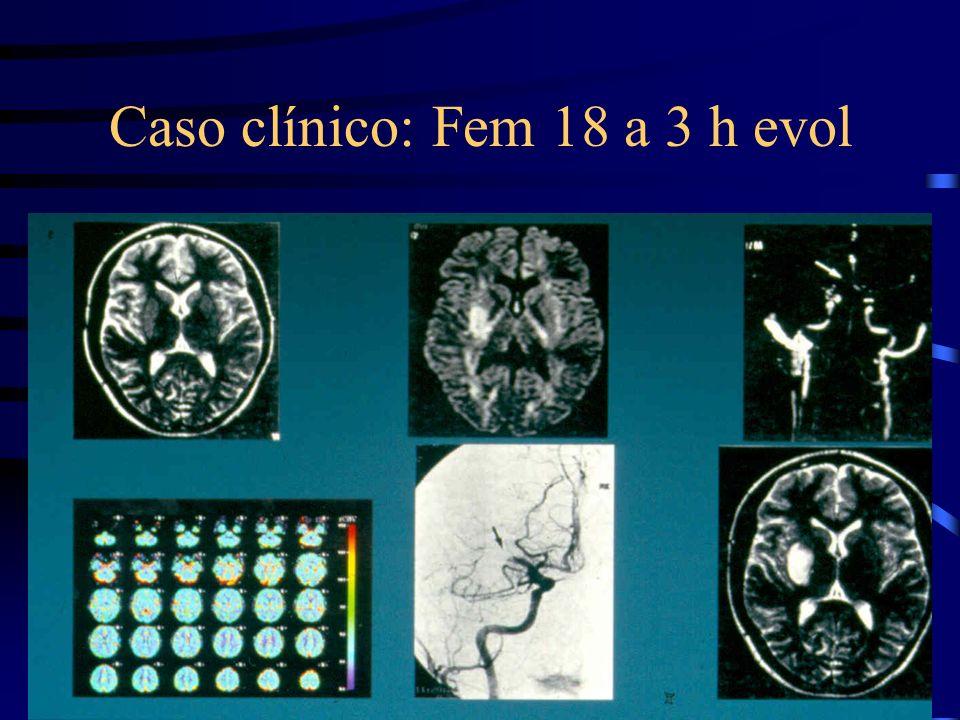 Caso clínico: Fem 18 a 3 h evol