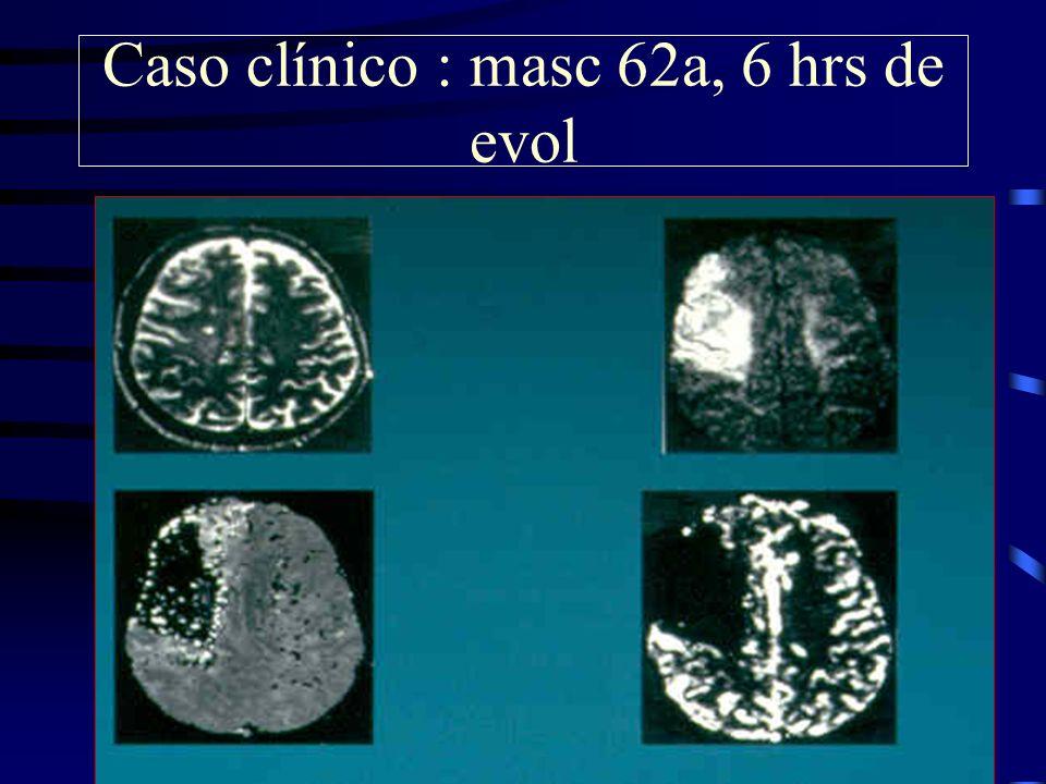 Caso clínico : masc 62a, 6 hrs de evol