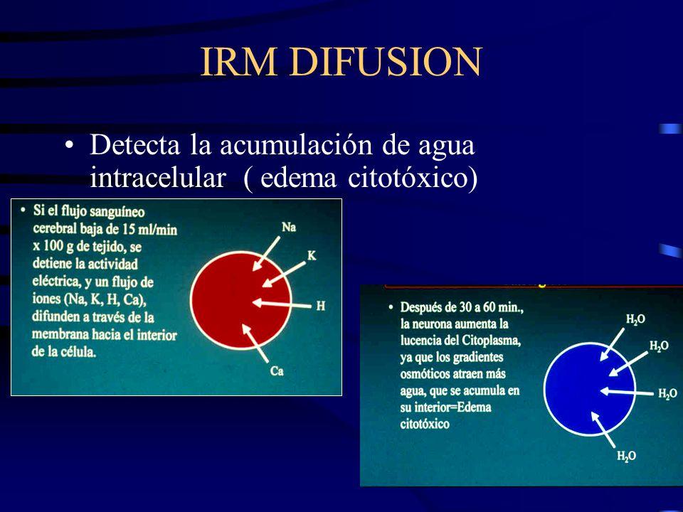 Detecta la acumulación de agua intracelular ( edema citotóxico)
