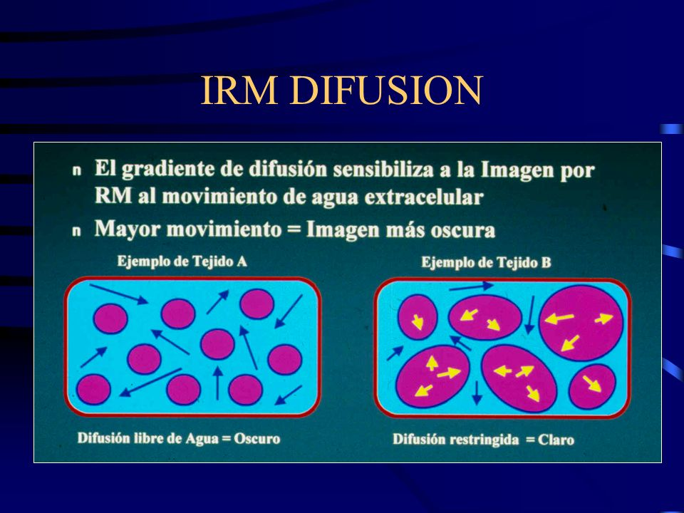 IRM DIFUSION