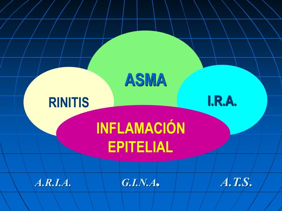 ASMA RINITIS I.R.A. INFLAMACIÓN EPITELIAL A.R.I.A. G.I.N.A. A.T.S.
