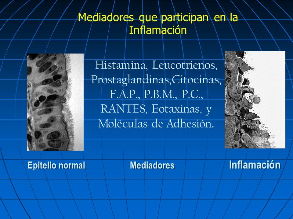 Epitelio normal Mediadores Inflamación Histamina, Leucotrienos, Prostaglandinas,Citocinas, F.A.P., P.B.M., P.C., RANTES, Eotaxinas, y Moléculas de Adh