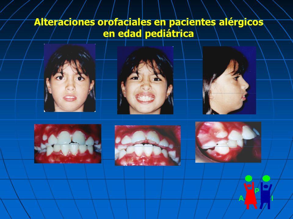 AI P Alteraciones orofaciales en pacientes alérgicos en edad pediátrica